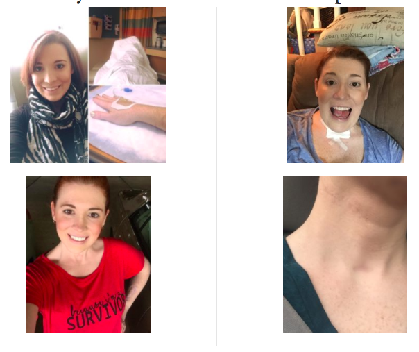 Read more about the article Here's Why Oral Cancer Survivor Devin Koslap Chose CBD