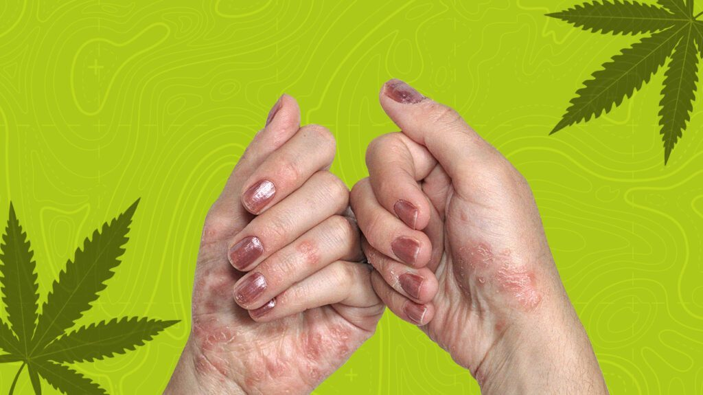 Read more about the article Current Scientific Trials On Cannabidiol (CBD) Show Great Promise For Eczema and Psoriasis